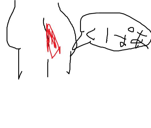【悲報】ワイ、ケツから血が止まらずに救急車を呼ぶ